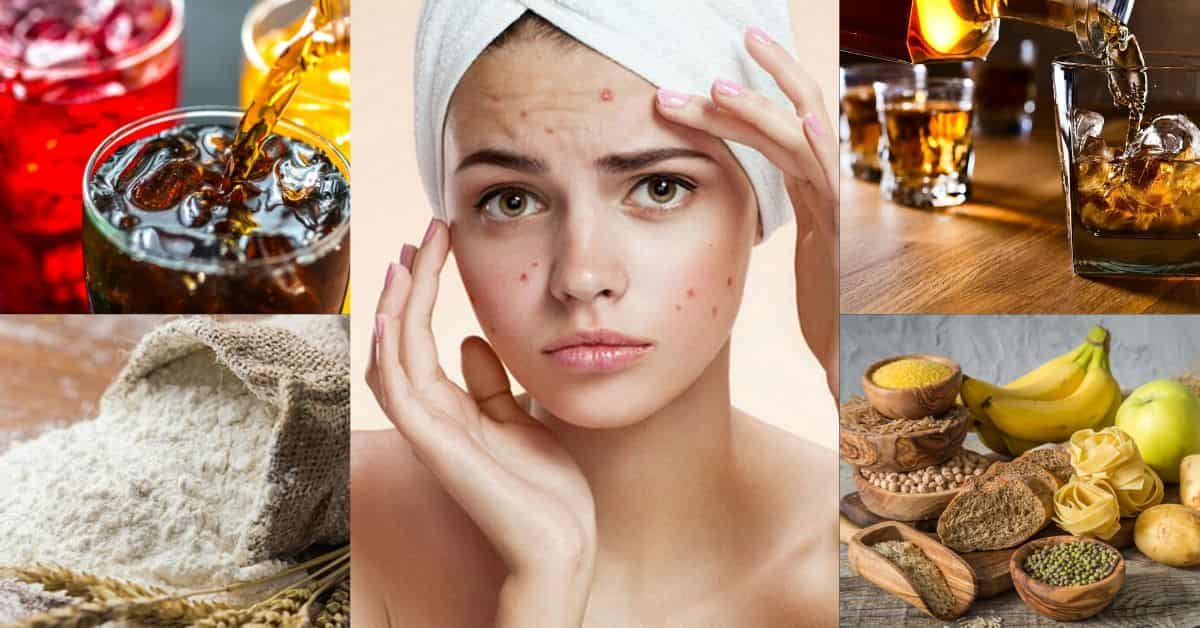 foods-that-cause-acne
