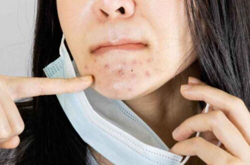 how-to-treat-mask-acne